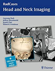 Head and Neck Imaging (Radcases Plus Q&A)