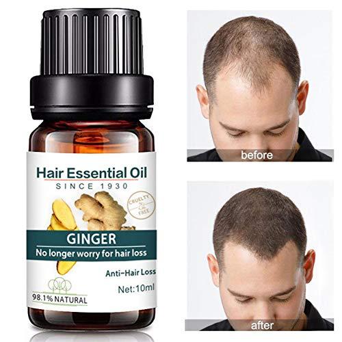 Ätherisches Öl für die Haarpflege, Cocohot Ingwer Haar ätherisches Öl Haarwachstum Essenz Öl, Anti-Haarausfall, Haarbehandlung Öl