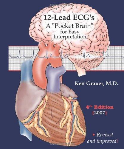 ECG Pocket Guide (Pocket Brain) - ECG Interpretation by Ken Grauer (2007-12-01)