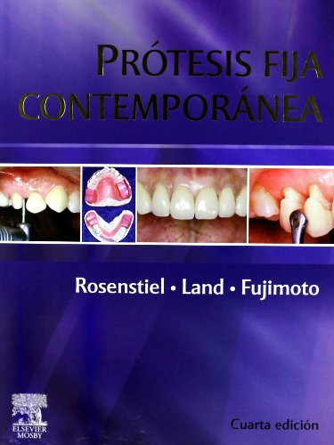 Prótesis fija contemporánea por S.F. Rosenstiel