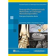 Tomografía Computarizada Multicorte en Patología Musculoesquelética: Guía para la práctica diaria