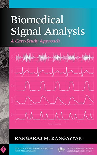 Biomed Signal Analysis: A Case-study Approach (IEEE Press Series on Biomedical Engineering) by Rangayyan (14-Dec-2001) Hardcover