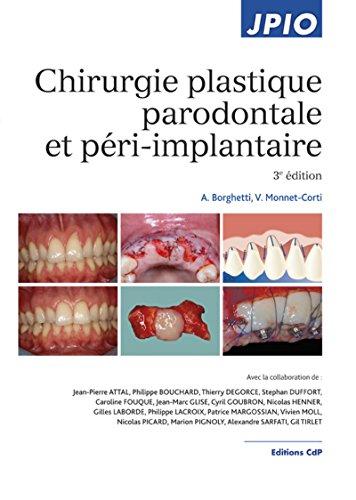 Chirurgie plastique parodontale et péri-implantaire