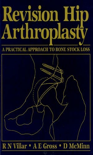 Revision Hip Arthroplasty: A Practical Approach to Bone Stock Loss
