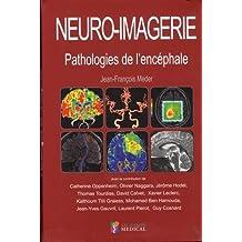 Neuro-imagerie : Pathologies de l'encéphale