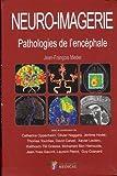 Neuro-imagerie - Pathologies de l'encéphale