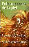 Enfermedades de la piel: Psoriasis y vitíligo (Tratamiento natural nº 43)