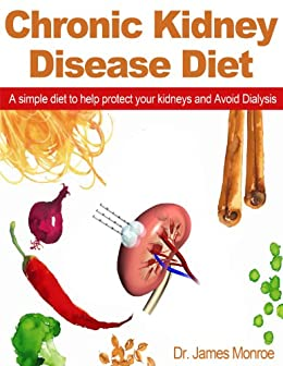 Chronic Kidney Disease Diet: A simple diet to help protect your kidneys and Avoid Dialysis (English Edition) di [Monroe, Dr James]