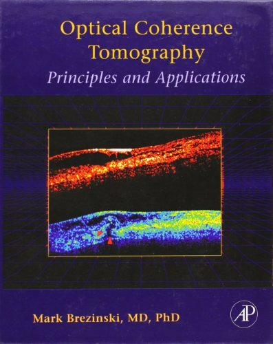 Optical Coherence Tomography: Principles and Applications by Mark E. Brezinski (2006-10-11)