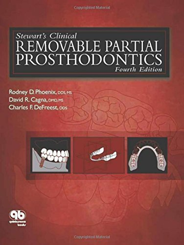 Stewart's Clinical Removable Partial Prosthodontics (Phoenix, Stewart's Clinical Removable Partial Prosthodontics) by Rodney D. Phoenix (2008-10-01)