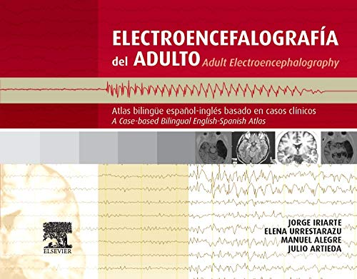 Electroencefalografía del adulto/Adult electroencephalography