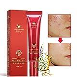 Best Tratamientos para el acné - Herbal Cleansing Anti-Acne Gel,Gel para el tratamiento del Review