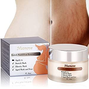 Stretch Mark Cream Pregnancy Stretch Mark Cream Pregnancy Cream Pregnancy Belly Cream for Wrinkles and Stretch Marks, Repair Scar Slack Line Abdomen Stretch Marks Postpartum (50ml)