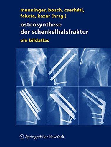 Osteosynthese der Schenkelhalsfraktur: Ein Bildatlas