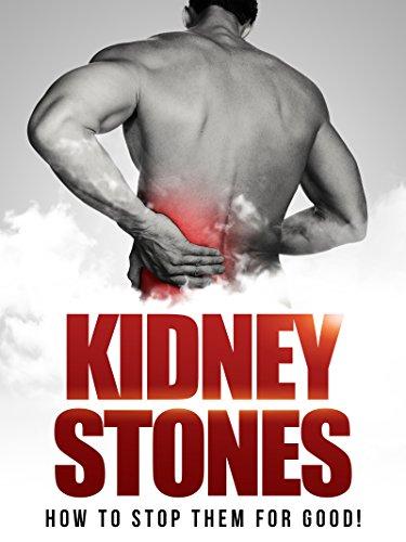 Kidney Stones: Getting Rid Of Them For Good! (kidney Stones Cure, Preventing Kidney Stones) por Chad Gibbs epub