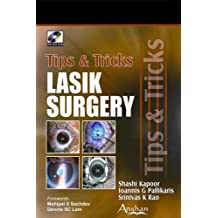 Lasik Surgery: Tips and Tricks