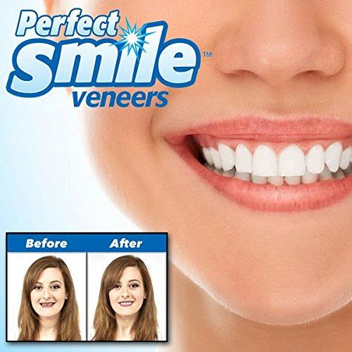 SHOP STORY - Dent de Remplacement Réutilisable et Amovible, Pose Instantanée de Dents Artificielles Instant Perfect Smile Kit Prothèse Dentaire Supérieure