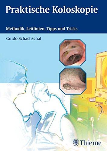 Praktische Koloskopie: Methodik, Leitlinien, Tipps und Tricks