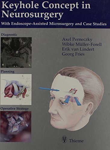 Keyhole Concept in Neurosurgery: With Endoscope-Assisted Microsurgery and Case Studies by Axel Perneczky (1999-08-06)