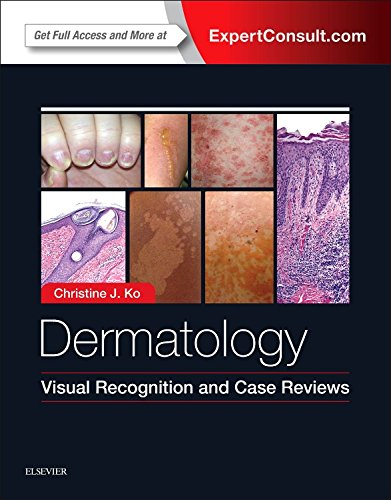 Read Dermatology: Visual Recognition and Case Reviews, 1e PDF