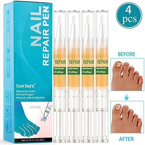 nagelpilz Nail Treatment & Nagelpflege Stift, Nagel Behandlung Set, Nagel Reparatur Kit für Nagelwachstum, Pflege von rissigen, rauen, spröden sowie gespaltenen Fußnägel und Fingernägel 4pcs
