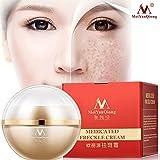 Romsion Sommersprossen Creme Whitening Anti-Aging-Feuchtigkeitscreme Melanin Freckle Speckle entfernen Hautpflege