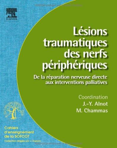 Lésions traumatiques des nerfs périphériques