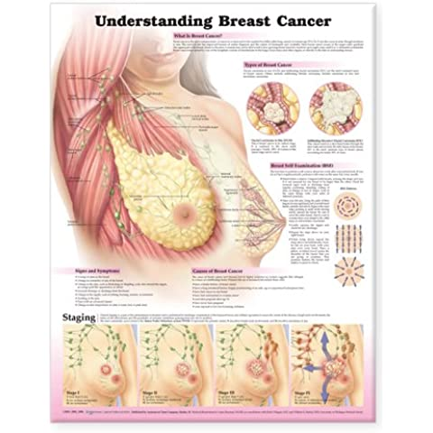Understanding Breast Cancer Anatomical Chart - Breast Cancer Poster