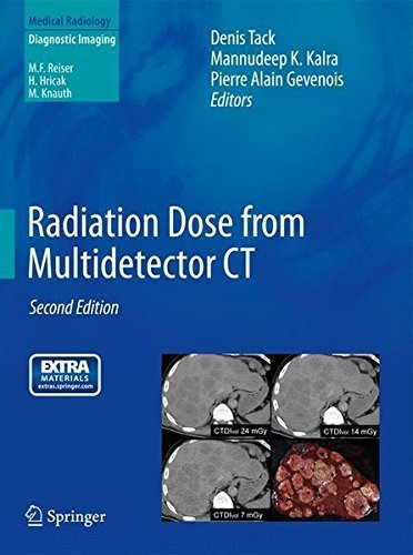 Radiation Dose from Multidetector CT (Medical Radiology) (2012-06-05)