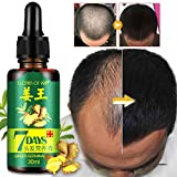 World2Home Ginger Germinal Serum Essence Oil Natural Hair Loss Treatement Effective Fast Growth