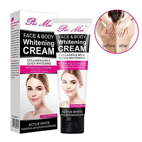 Whitening Cream, Crema Blanqueadora, Skin Whitening