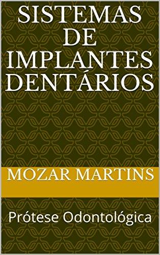 Sistemas de Implantes Dentários: Prótese Odontológica (Portuguese Edition)