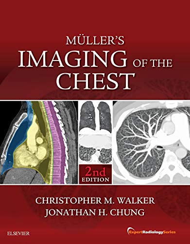 Muller's Imaging of the Chest E-Book: Expert Radiology Series (English Edition)
