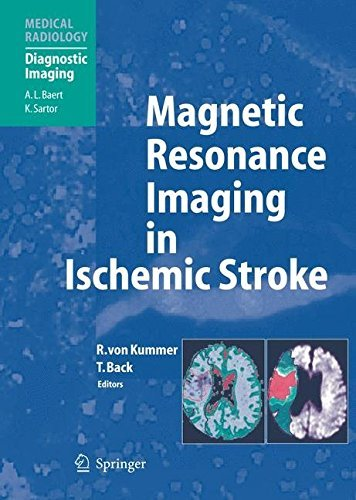 Magnetic Resonance Imaging in Ischemic Stroke (Medical Radiology) (2005-10-11)
