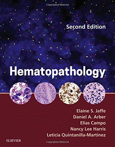 Hematopathology, 2e