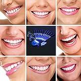 Zahn Bleaching System 10 Gel Zahnbleichen Pro Set für Zuhause Inkl. Laserlicht und 2 X Zahnschienen Professionelles Zahnbleichen Oral-Gel Kit Zahn Aufheller Zahnweiß