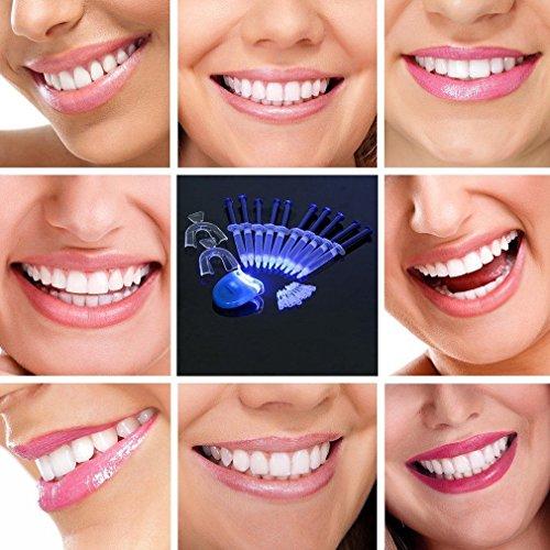 Weiß Professionelle Bleaching-system (Zahn Bleaching System 10 Gel Zahnbleichen Pro Set für Zuhause Inkl. Laserlicht und 2 X Zahnschienen Professionelles Zahnbleichen Oral-Gel Kit Zahn Aufheller Zahnweiß)