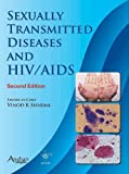 Sexually Transmitted Diseases and HIV & AIDS 2E