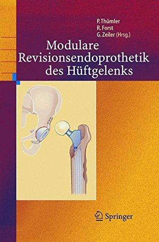 Modulare Revisionsendoprothetik des Hüftgelenks (Hüftendoprothetik)