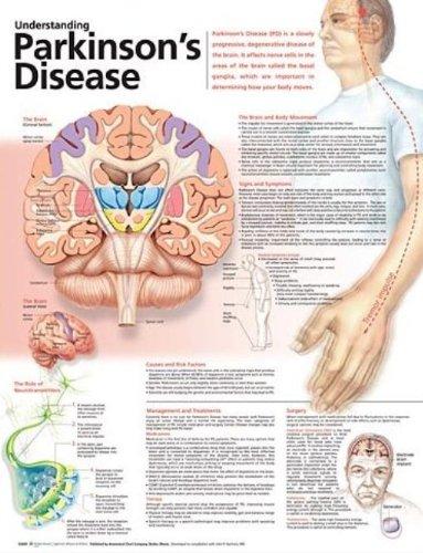 Understanding Parkinson's Disease Anatomical Chart par  Anatomical Chart Company