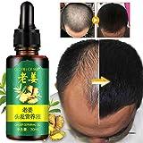 Hair Growth Essence Liquid - Revitalise la croissance des cheveux, stimule la croissance des cheveux/renforce les follicules pileux. -Hair Regrow Treatment, traitement de perte de cheveux