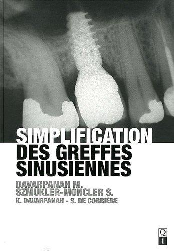 Simplification des greffes sinusiennes