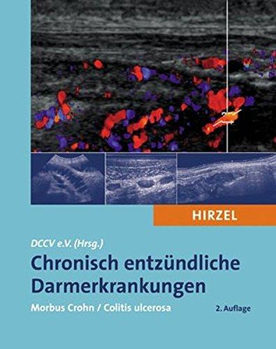 che Darmerkrankungen: Morbus Crohn / Colitis ulcerosa ()