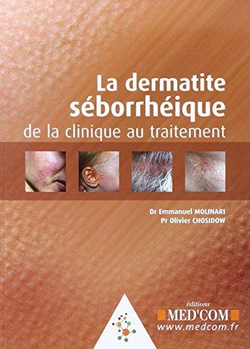 La dermatie séborrhéique