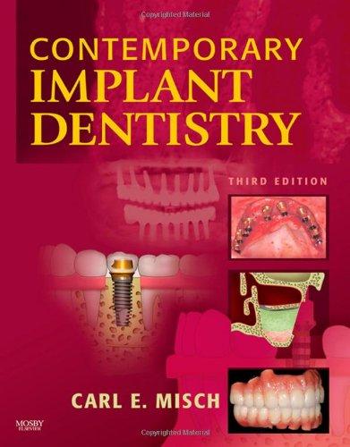 Contemporary Implant Dentistry, 3e