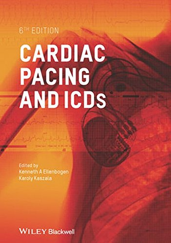Cardiac Pacing and Icds 6E