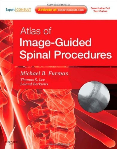 Atlas of Image-Guided Spinal Procedures, 1e by Furman, Michael Bruce (2012) Hardcover