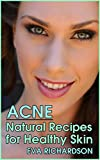 Acne: Natural Recipes for Healthy Skin: (Natural Beauty Book, Healthy Skin Care)