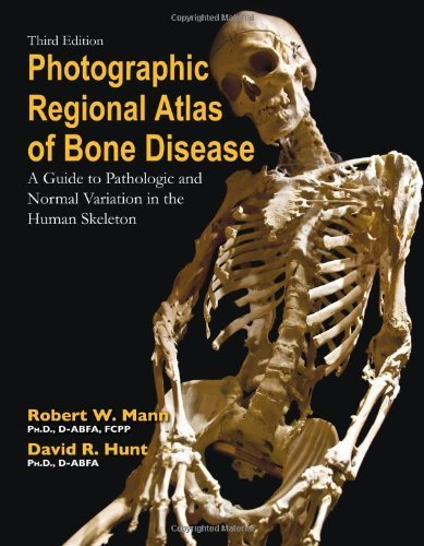 Photographic Regional Atlas of Bone Disease: A Guide to Pathologic and Normal Variations in the Human Skeleton by Robert W. Mann (2012-11-30)