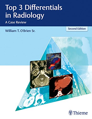 Top 3 Differentials in Radiology: A Case Review (English Edition)